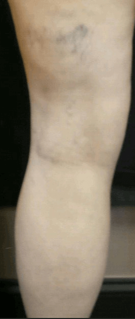 Large spider veins After