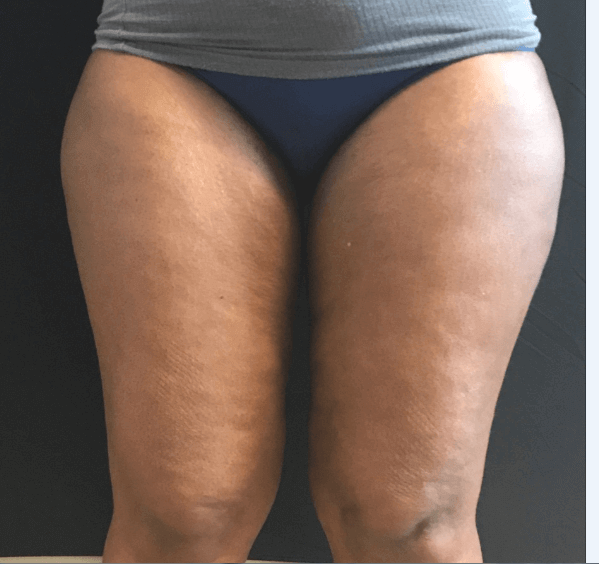 Thigh Liposuction Before