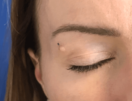 Mole Removal on Face Before