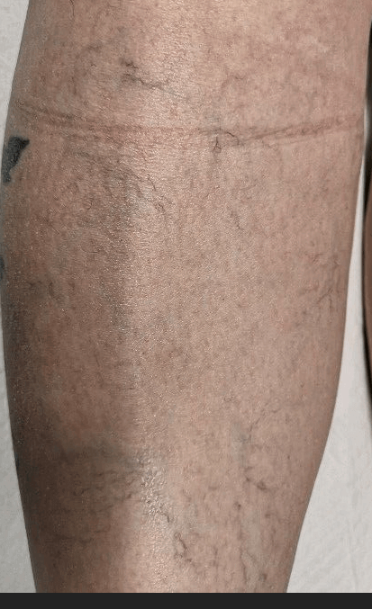 spider veins after 2 treatment Before