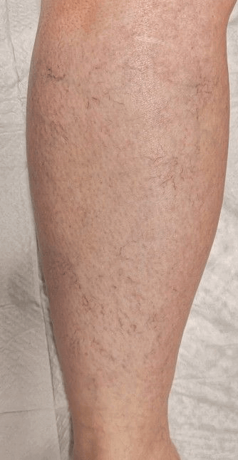 spider veins after 2 treatment After