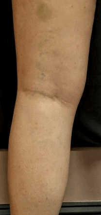 large vein after one treatment Before
