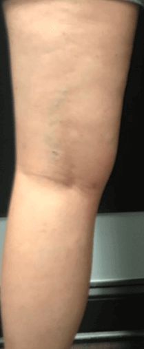 large vein after one treatment After