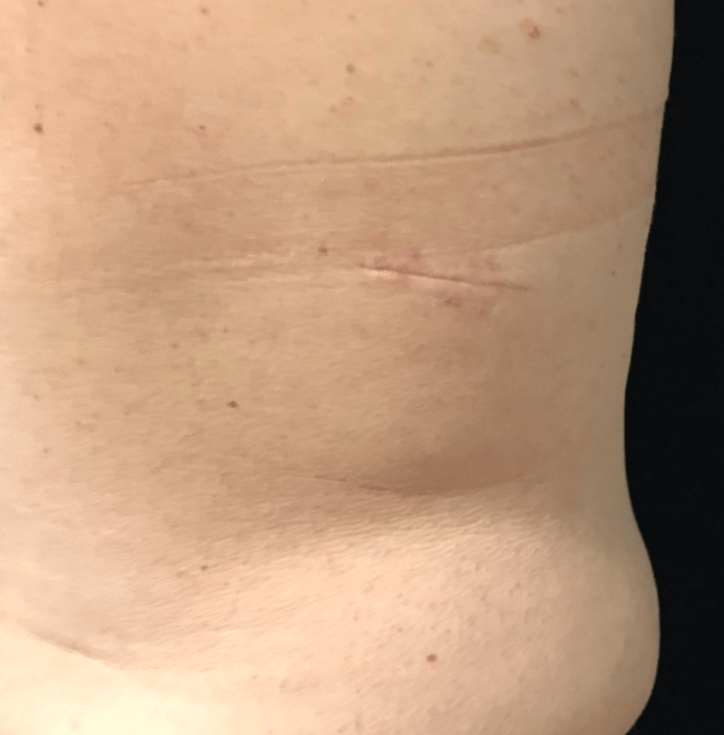Lipoma Removal After
