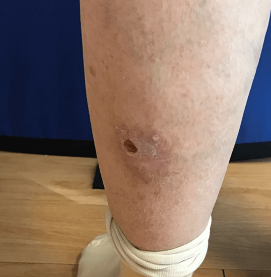 Skin cancer removal Before