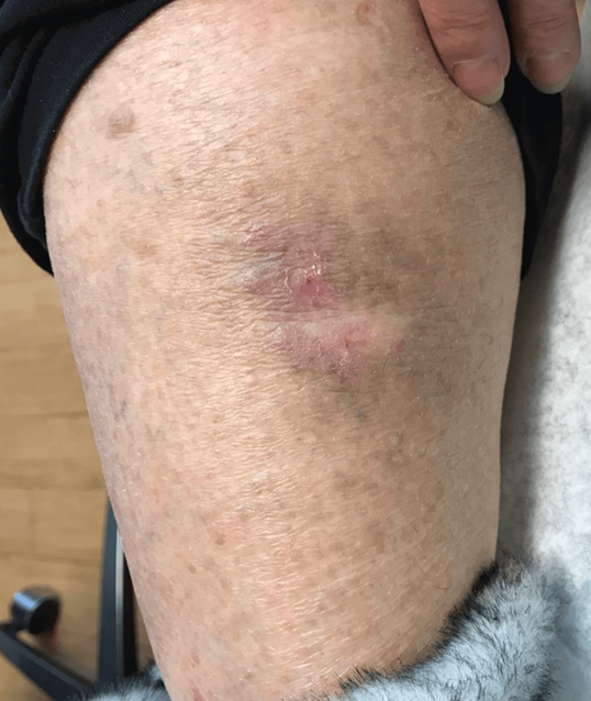 Skin cancer removal After