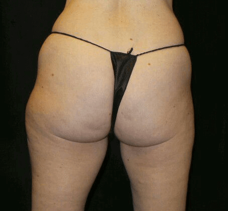 Excellent Coolsculpting Result Before