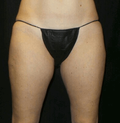 Excellent Coolsculpting Result After