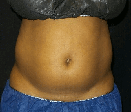 Great Coolsculpting Results Before