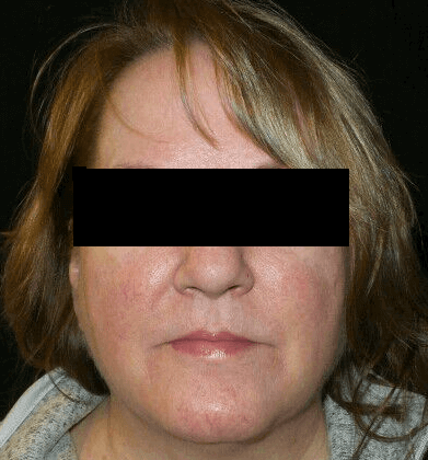 Excellent Results for Rosacea Before