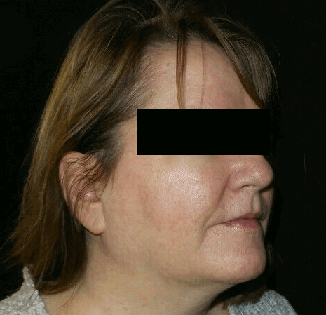 Excellent Results for Rosacea After