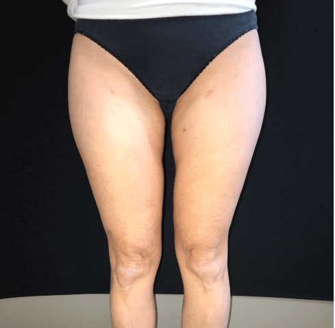 Inner thigh lipo After