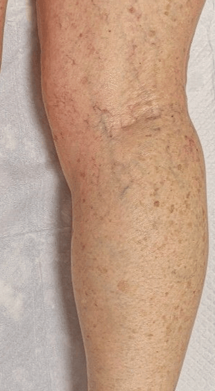 Spider veins after 3rd sclero Before