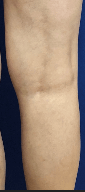 Spider veins after 3rd sclero After