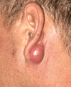 Abscess right ear Before