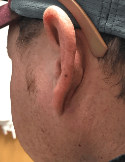 Abscess right ear After