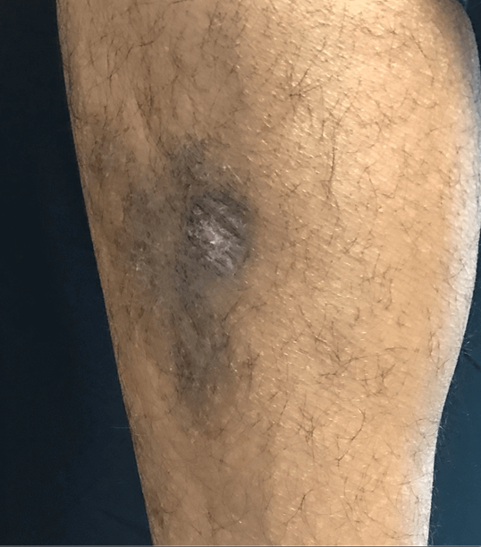Pyogenic granuloma After