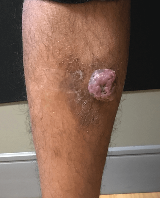 Pyogenic granuloma Before