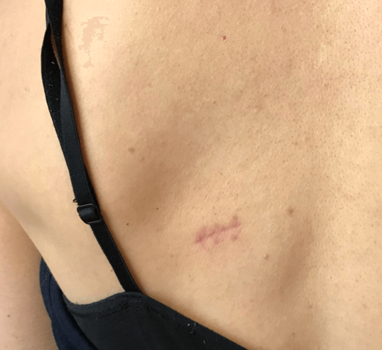 Large lipoma removal After