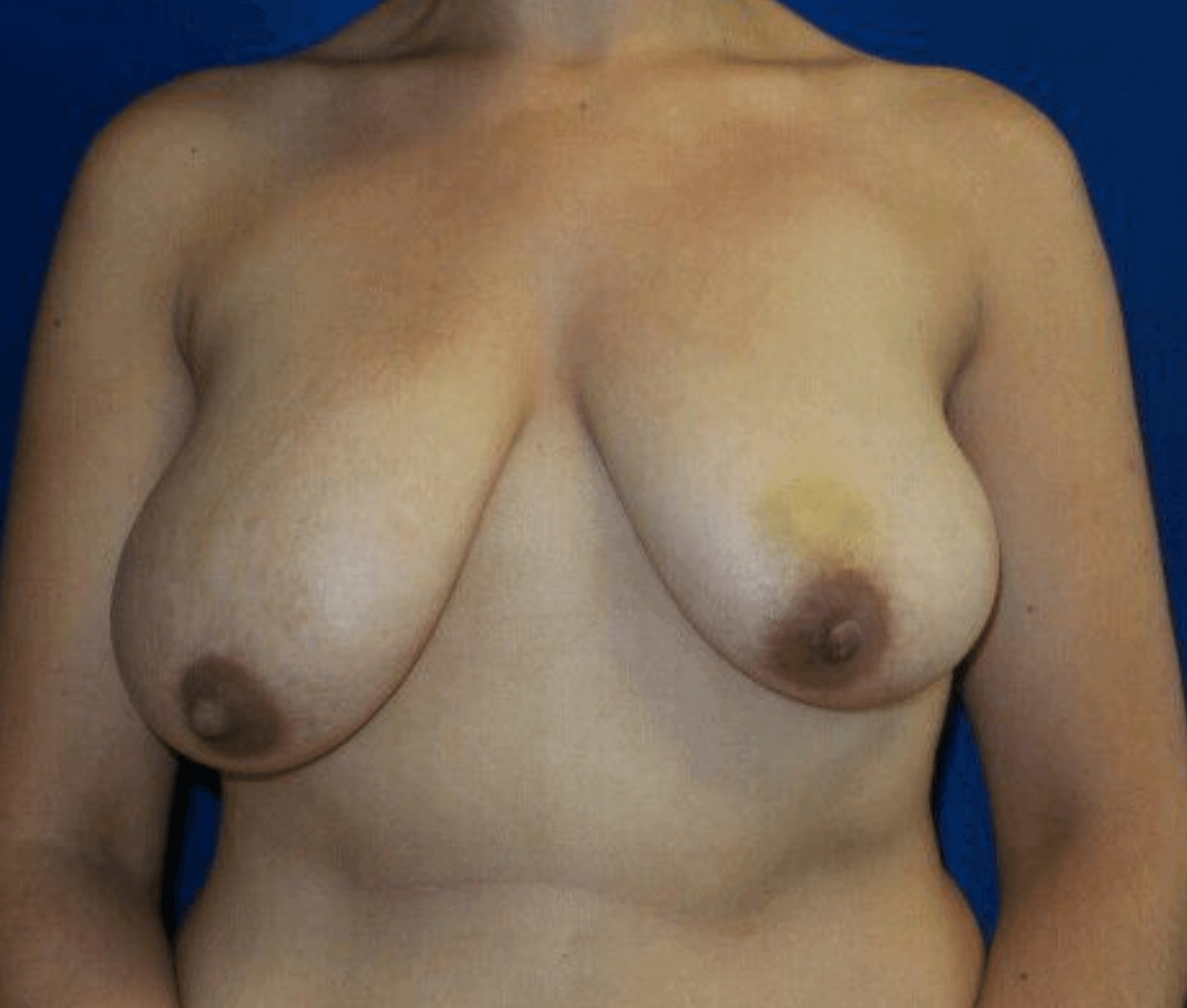 Breast lift with implants Before