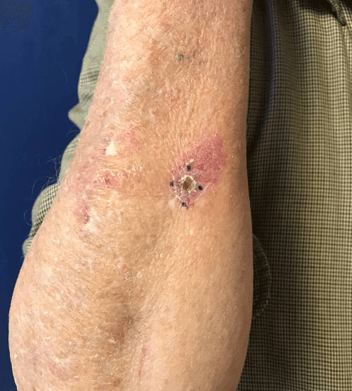 Basal cell carcinoma excision Before