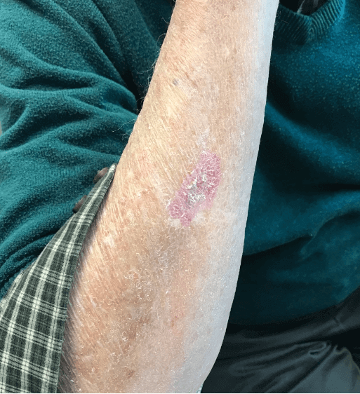 Basal cell carcinoma excision After