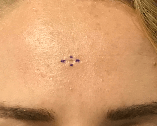 Scar Revision Forehead Before