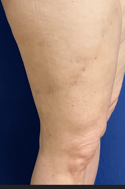 3 months after vein procedure After