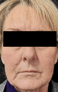 Juvederm for Lower Face Lines Before
