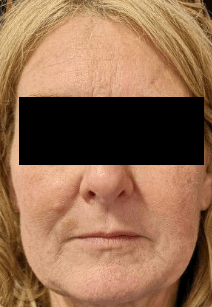 Juvederm for Lower Face Lines After