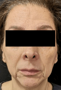 Juvederm and Botox Before