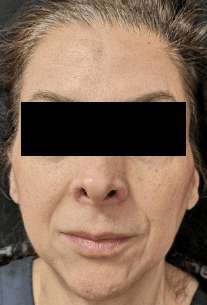 Juvederm and Botox After