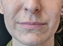 Volbella for Subtle Lip Volume Before