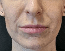 Volbella for Subtle Lip Volume After