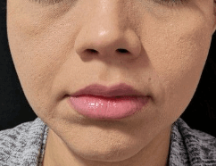 Juvederm Smooths Out Facial Lines