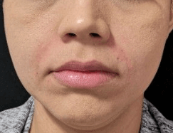 Juvederm for Parenthesis After