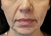 Juvederm for Smile Lines Before