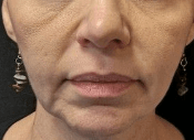 Juvederm for Smile Lines After