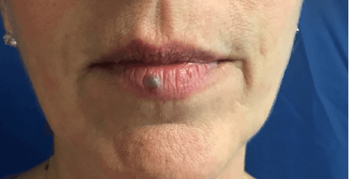 Lip skin lesion removal Before