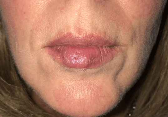Lip skin lesion removal After