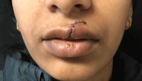 Lip Laceration wound care Before