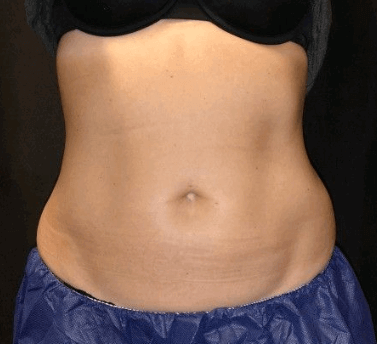 Two Treatments of Midsection After