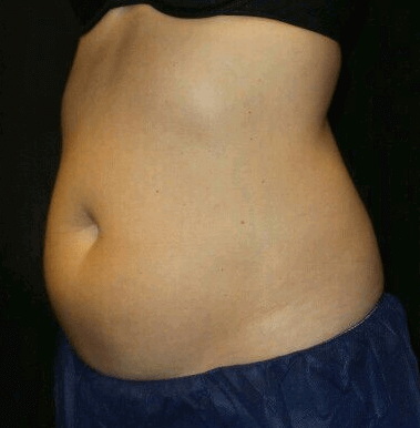 Two Treatments of Midsection Before