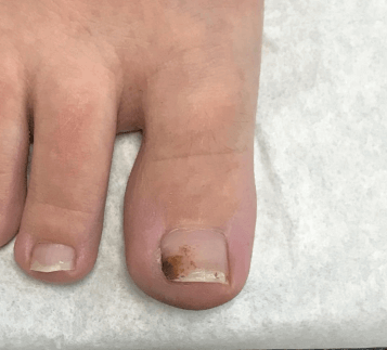 Pyogenic granuloma removal After