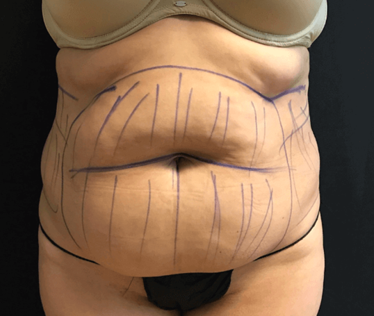 Abdomen and flank liposuction Before
