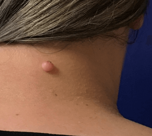 Mole Excision on Neck Before