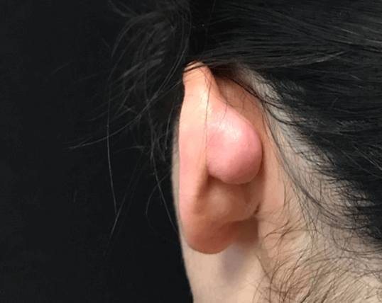 Keloid Excision on Ear Before