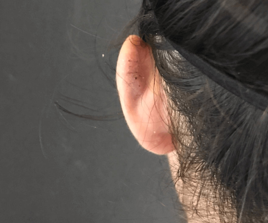 Keloid Excision on Ear After