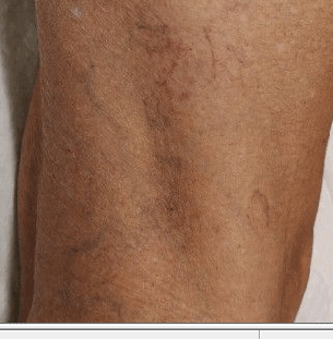spider veins Before