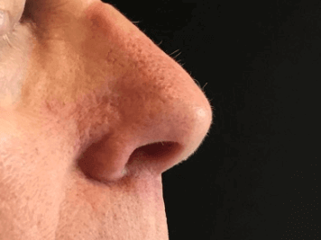 Mohs Closure on Nose After